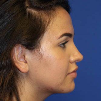 Rhinoplasty 17 year old female