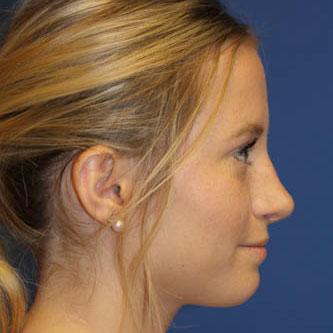 Rhinoplasty 20 year old female