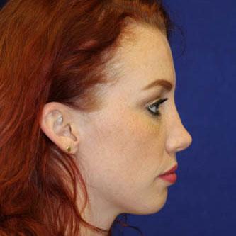 Rhinoplasty 26 year old female
