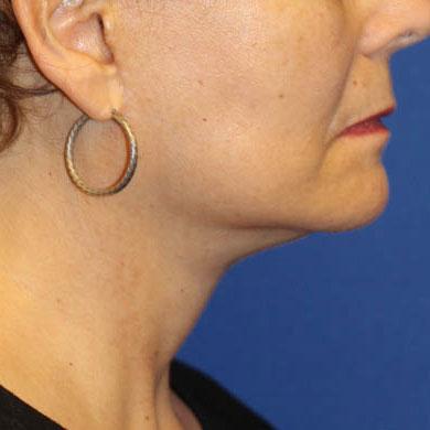 face neck lift