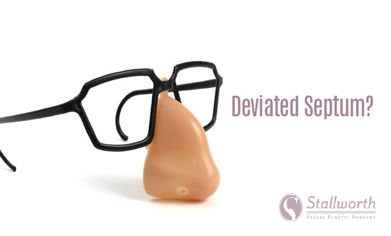 deviated septum correction