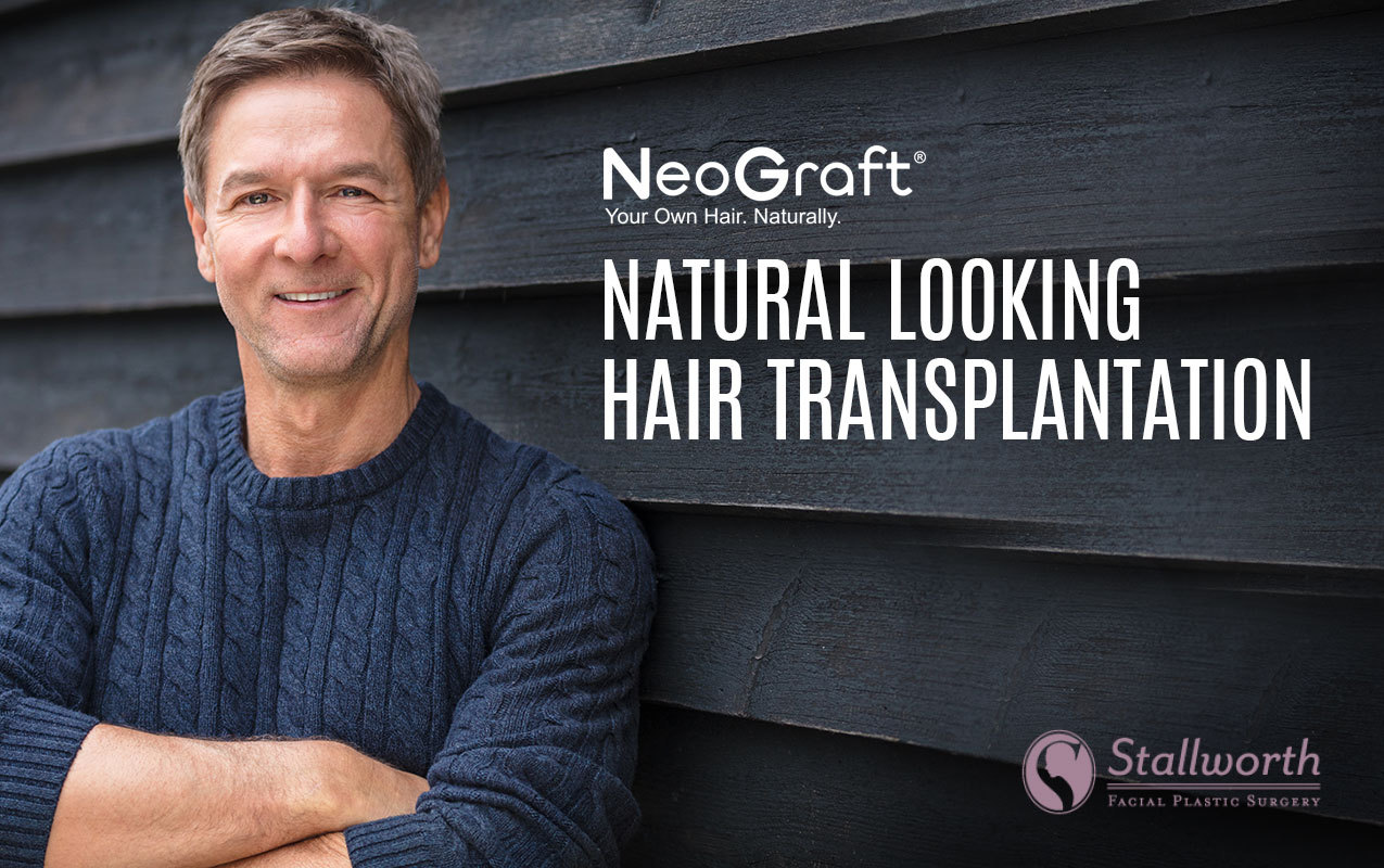 neograft hair transplantation creates natural look