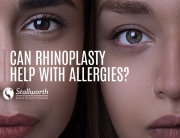 link between rhinoplasty and allergies