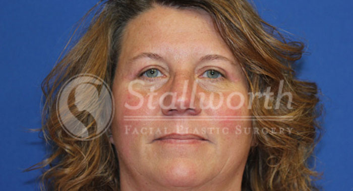 Blepharoplasty Cosmetic Surgery