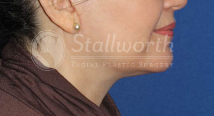 Cosmetic Face & Neck Surgery