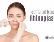 types of rhinoplasty blog